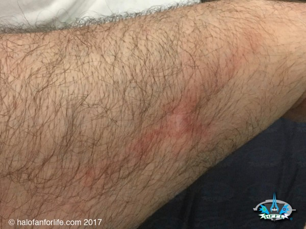 RTX2017 14 Panel Shoulder strap burn